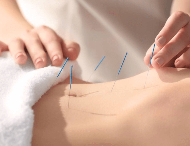Acupuncturists